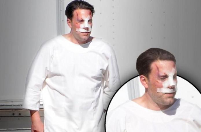 Ben-Affleck-cirugía-estética